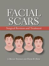 Facial Scars Surgical Revision And Treatment