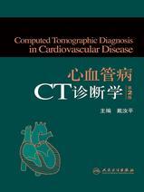 心血管病CT诊断学(第2版)