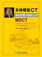 多排螺旋CT基础诊断与临床应用