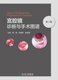 宫腔镜诊断与手术图谱(第2版)