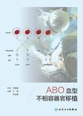 ABO血型不相容器官移植