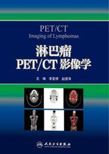 淋巴瘤PET/CT影像学