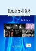 乳腺融合影像学