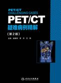 PET/CT疑难病例精解(第2版)