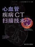心血管疾病CT扫描技术