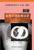 胸部疑难病例影像诊断