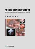 生殖医学内镜微创技术