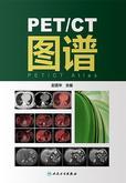 PET/CT图谱
