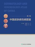 中国皮肤病性病图鉴(第3版)
