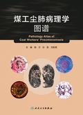 煤工尘肺病理学图谱