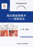 阻生智齿拔除术——涡轮钻法
